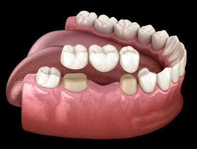 Dental Bridges in Annapolis MD