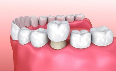 Dental Crown | Annapolis MD Dentist