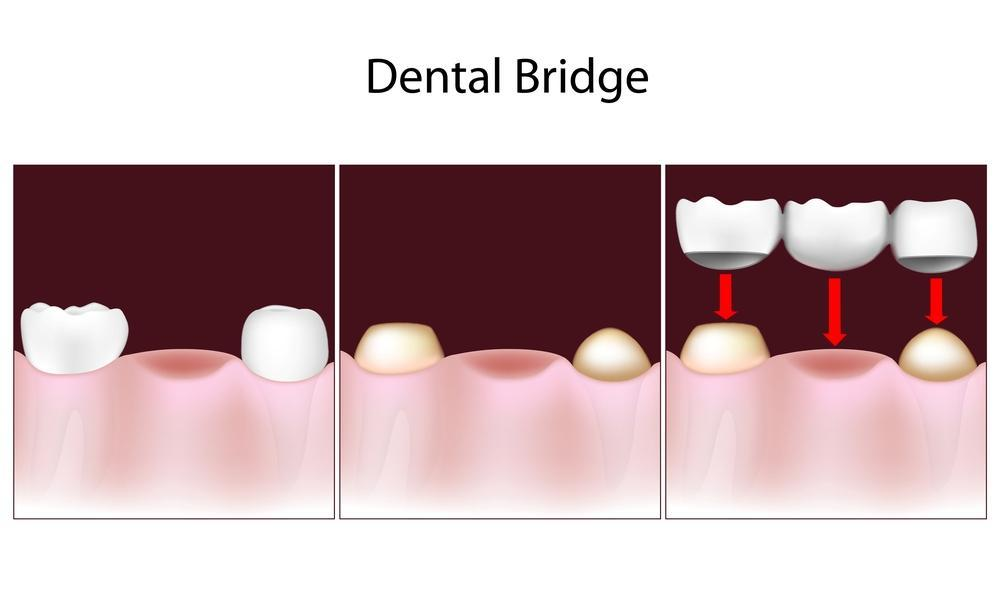 Dental bridge diagram | Dentist Annapolis mD
