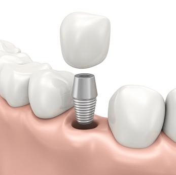 Dental implant illustration in annapolis md
