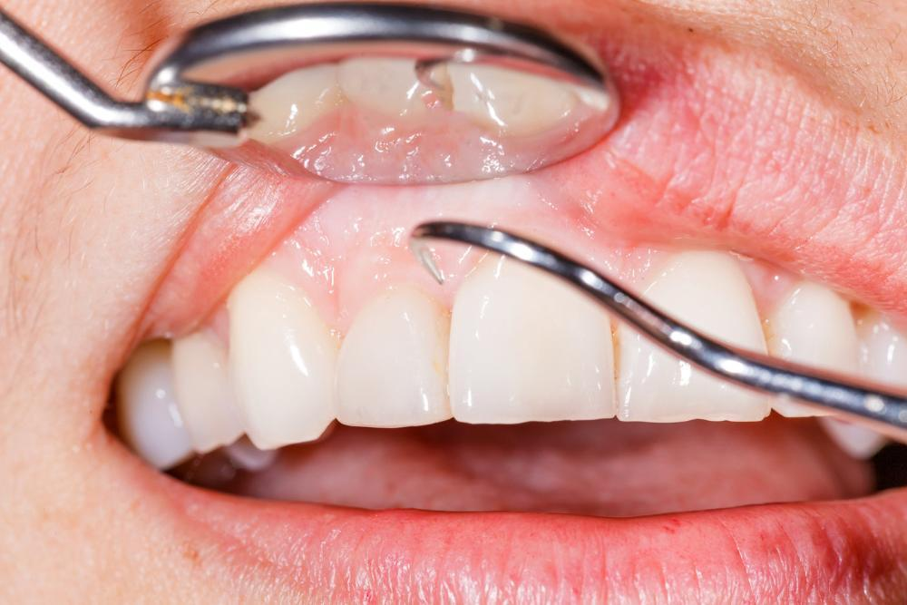 close up of periodontal disease in annapolis md